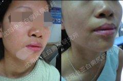 中华健康网:白癜风治疗走正道,抵制白癜风特效药
