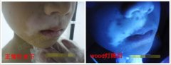 门诊案例:8岁男孩,嘴角白癜风患者