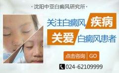 <b>沈阳皇姑区有几家白斑病医院白癜风患者的日常护理</b>